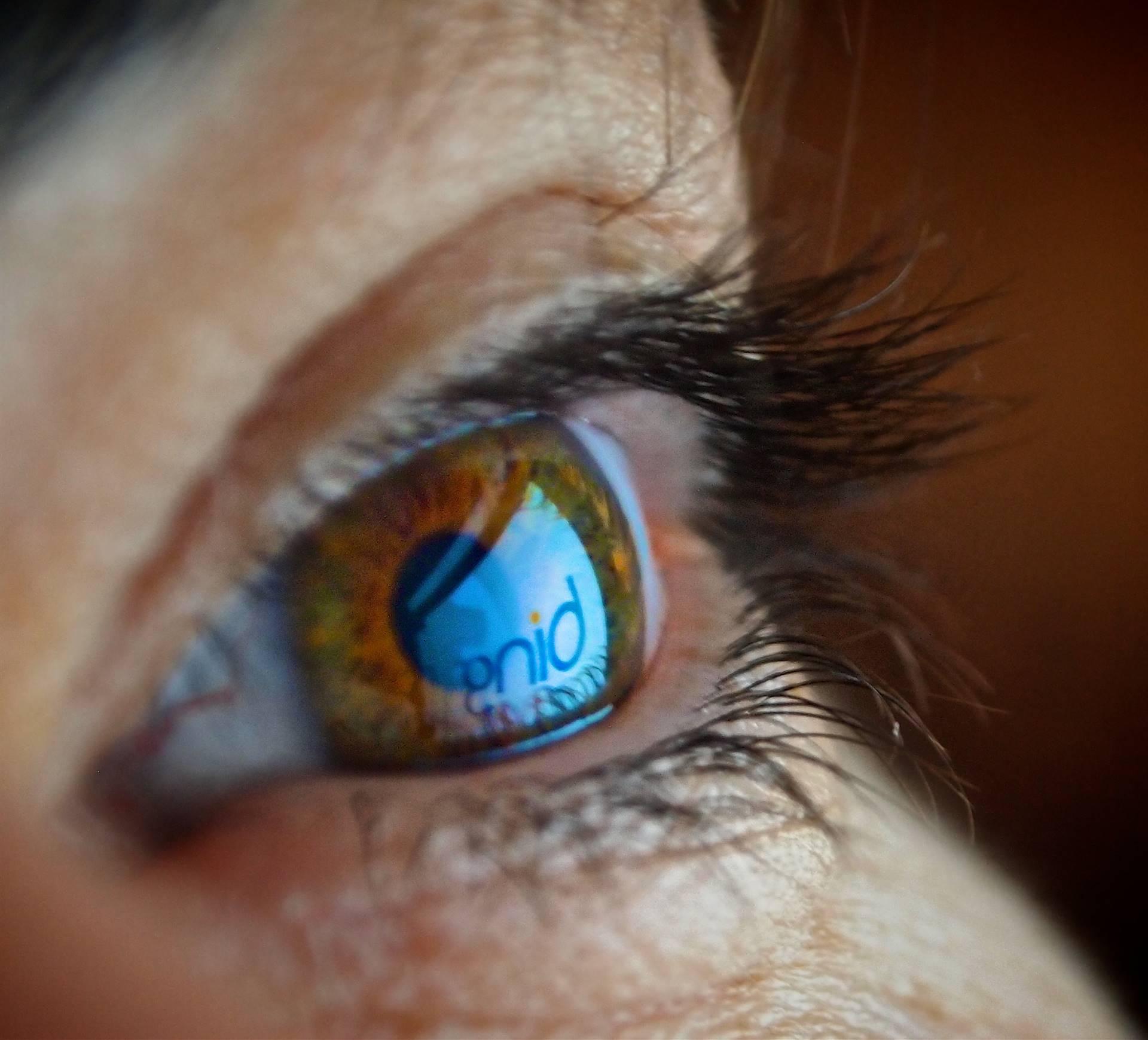 Human-Eye-Reflection
